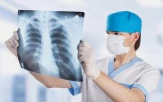 Cổ họng có phải là 'báo động' cho phổi? Nếu có 3 bất thường ở họng thì hầu hết phổi đã bị tổn thương