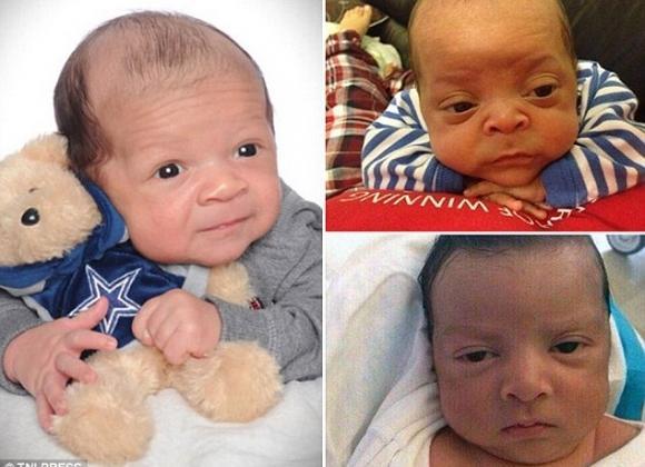 Những em bé vừa ra đời đã 'biến' thành cụ già khiến ai nhìn cũng phải bật cười